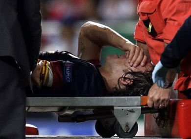 Barcelona's Carles Puyol is carried on a stretcher after injuring his arm in a fall during their Champions League group G match with Benfica.