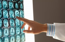 Patients in a vegetative state are often misdiagnosed, but a new brain scan may help